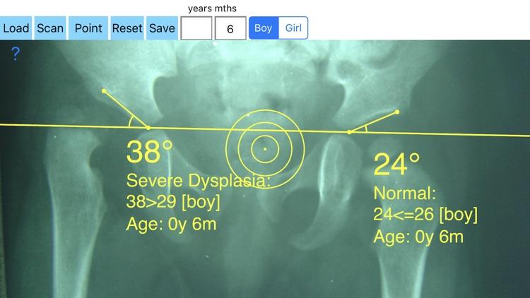 AcetabularIndex screenshot-4