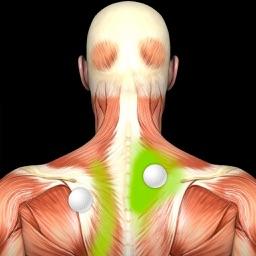 Puntos Desencadenantes Musculares