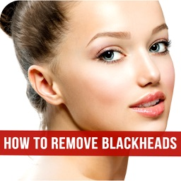 How to Remove Blackheads - Skin Care Tips for Blackheads and Whiteheads