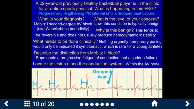 EKG - SecondLook screenshot-4