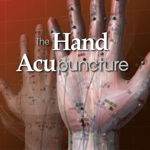 Hand Acupuncture