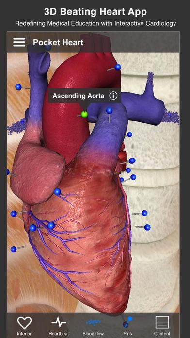 Pocket Heart review screenshots