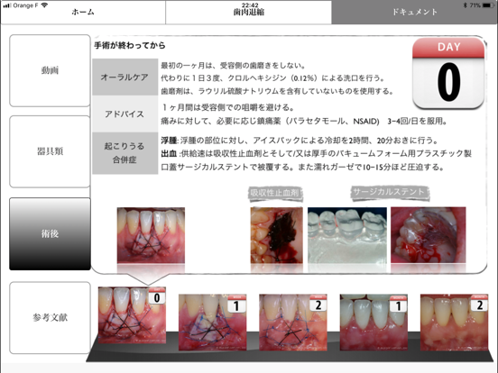 iMuco Récessions gingivalesのおすすめ画像5