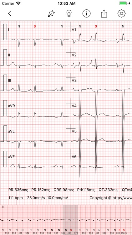 ECG - Cases for CME & EMT