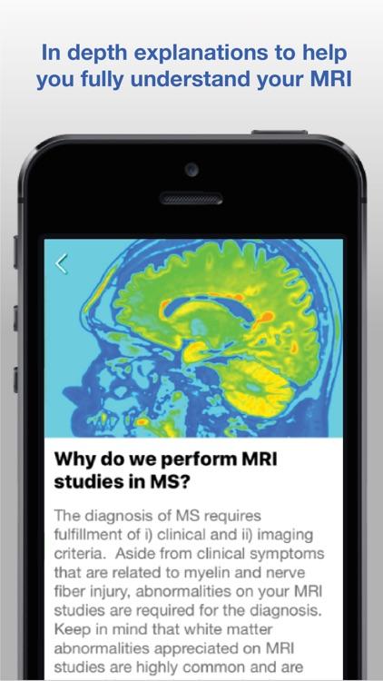 Understanding MRI: MS