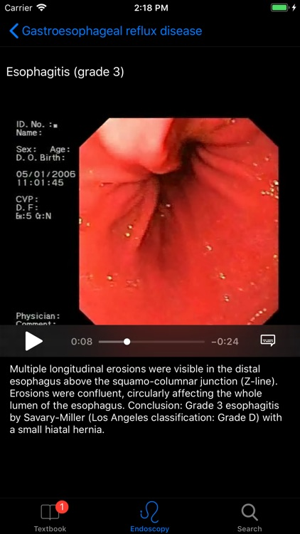 ENDO3® Gastrointestinal Atlas screenshot-3