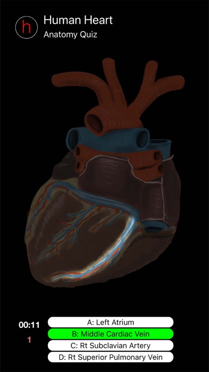 Human Heart Anatomy Quiz screenshot-3