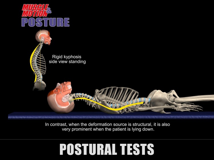 Muscle and Motion Posture screenshot-4