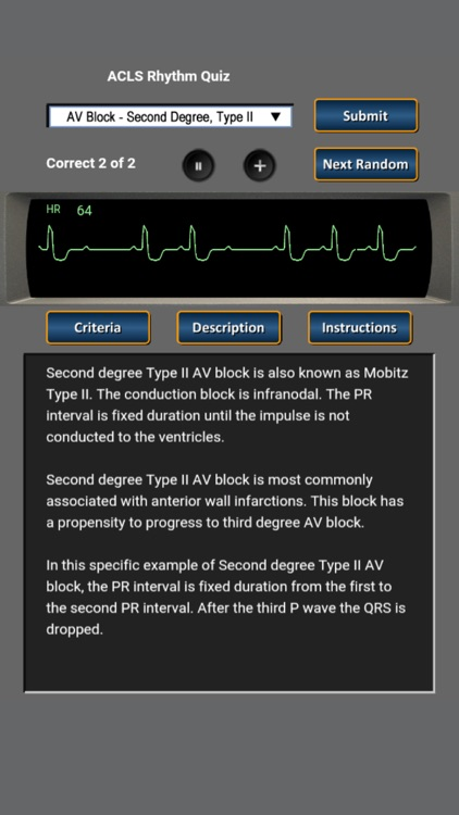 ACLS Rhythm Quiz screenshot-3