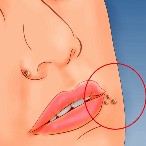 Warts 101-Ultimate Guide to Getting Rid of Warts