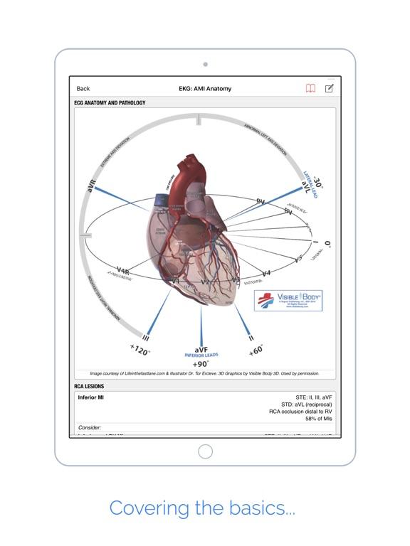 palmEM: Emergency Medicine Screenshots