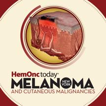 HemOnc Today Melanoma