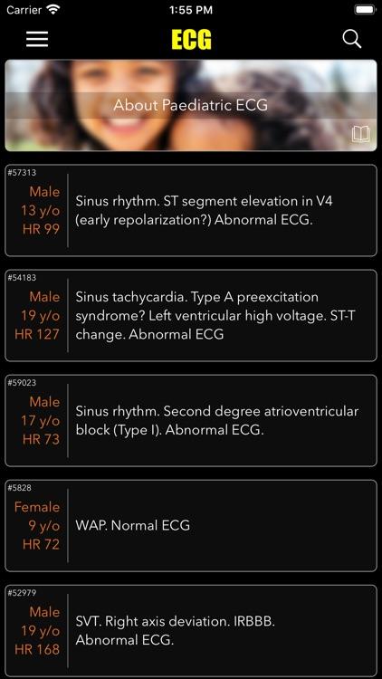 ECG / EKG screenshot-7