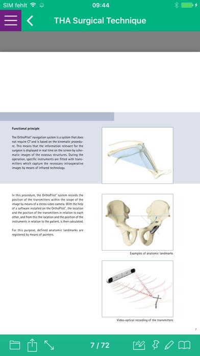 AESCULAP® OrthoPilot® บน PC และ Mac - ดาวน์โหลดและติดตั้งเวอร์ชัน