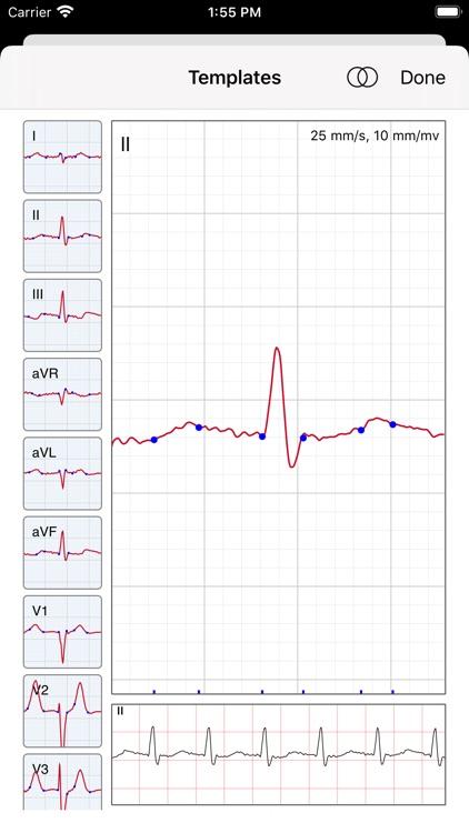 ECG / EKG screenshot-5
