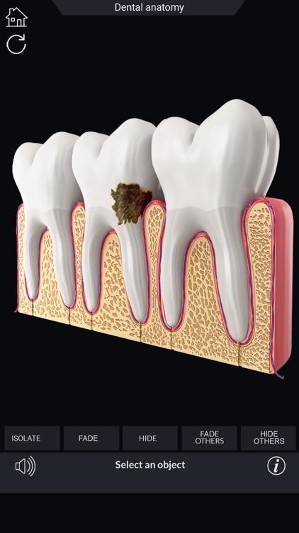 My Dental Anatomy screenshot-5