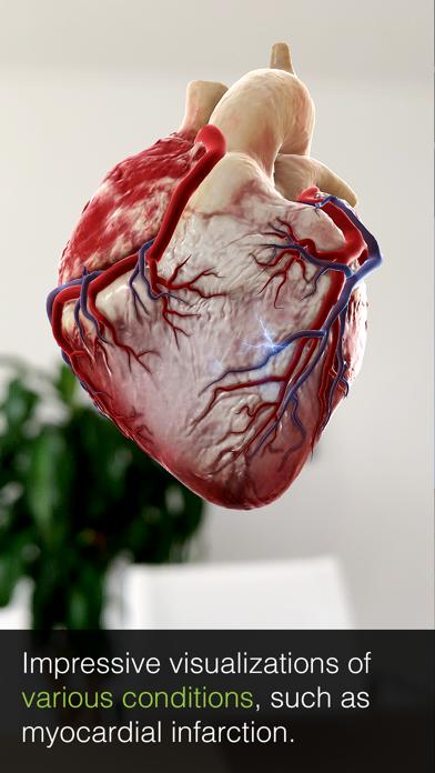 Screenshot for INSIGHT HEART in Denmark App Store