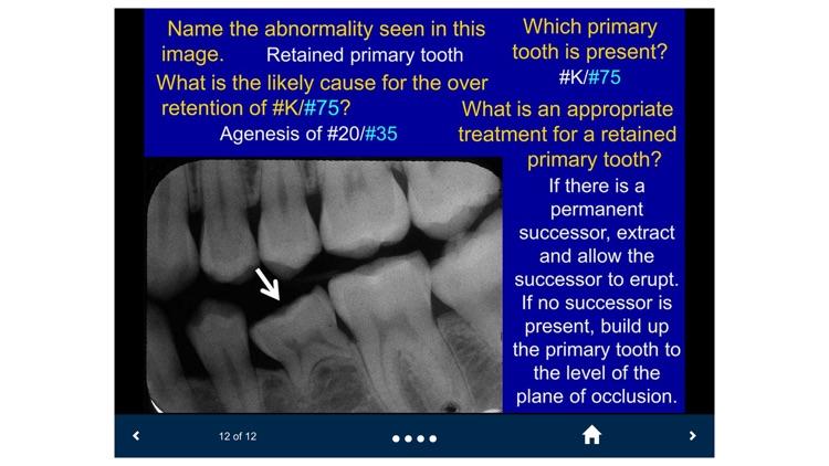 Oral Radiology - SecondLook screenshot-3