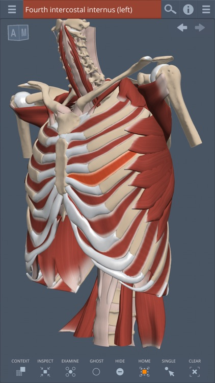 Thorax: 3D Real-time
