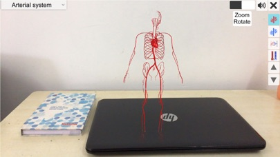 AR Vascular system screenshot 2
