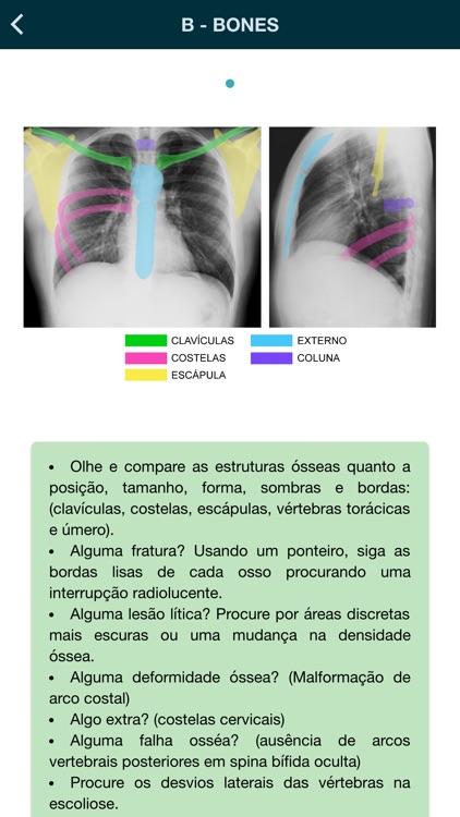 Thorax - thoracic radiology screenshot-5