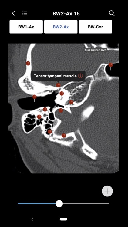 MedImaging-Radiology Made Easy screenshot-3