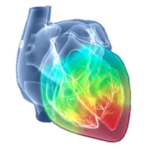 Intelligent Heart Sim AFib