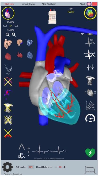 Intelligent Heart Sim AFib screenshot-5