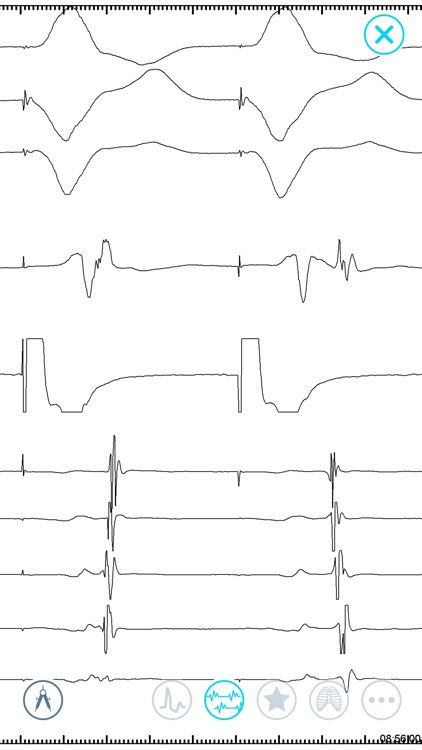 Cardiac Arrhythmia Challenge screenshot-4