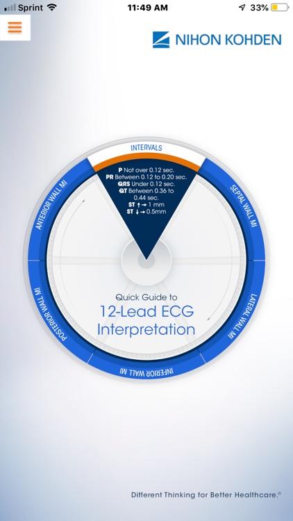 NK 12-Lead ECG Wheel