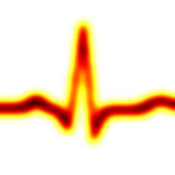 Heart Rate Display