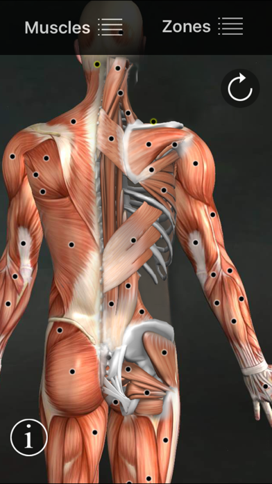 Screenshot for Muscle Trigger Points in Denmark App Store