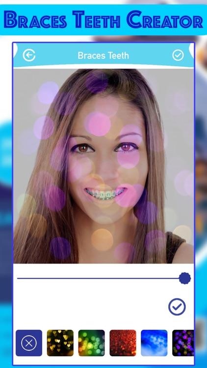 Braces Teeth Photo Creator