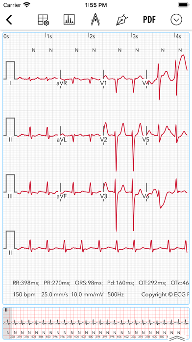 ECG / EKG Screenshot