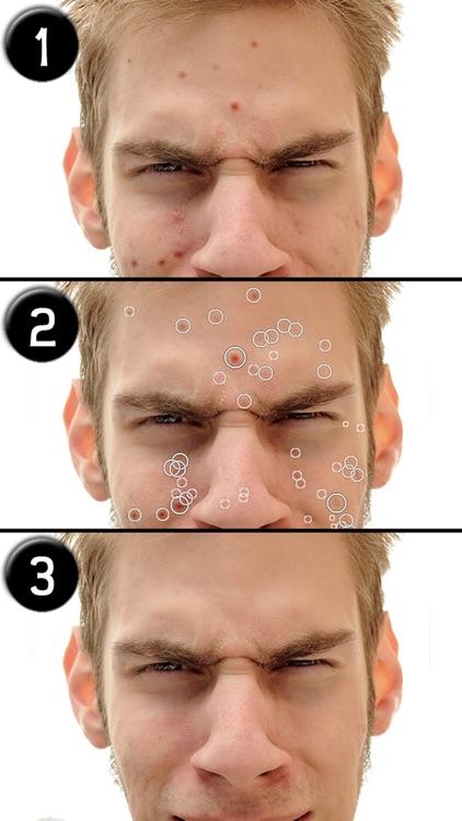 Pimple Eraser LITE