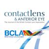 Contact Lens & Anterior Eye
