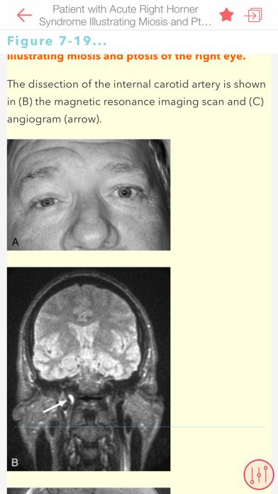 Mass Eye Ear Infirmary Manual Screenshot