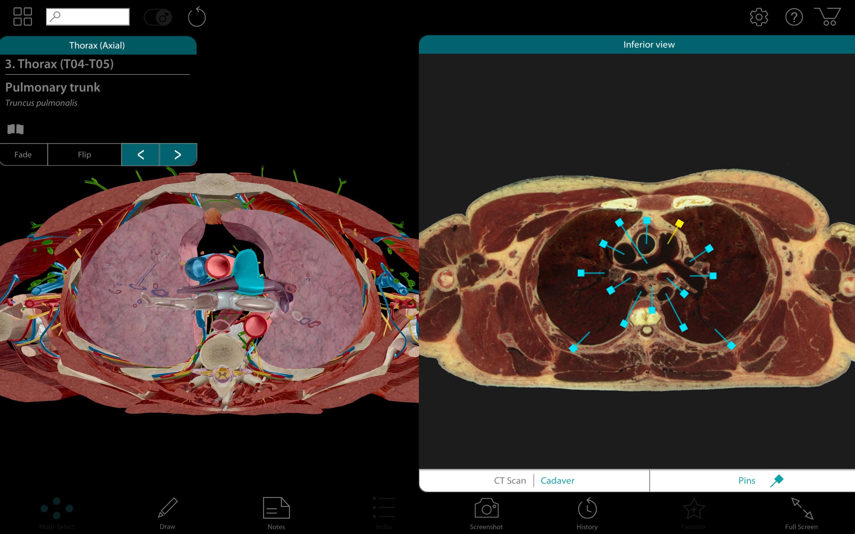 Screenshot do app Human Anatomy Atlas 2017 - Complete 3D Human Body