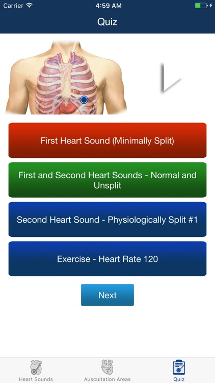 Heart Sounds Auscultation & Quiz screenshot-4
