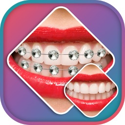 Braces Photo Editor -Braces Camera stickers