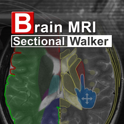 Brain MRI Sectional Walker