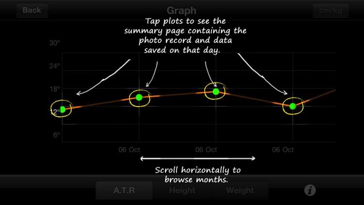 ScolioTrack screenshot-4