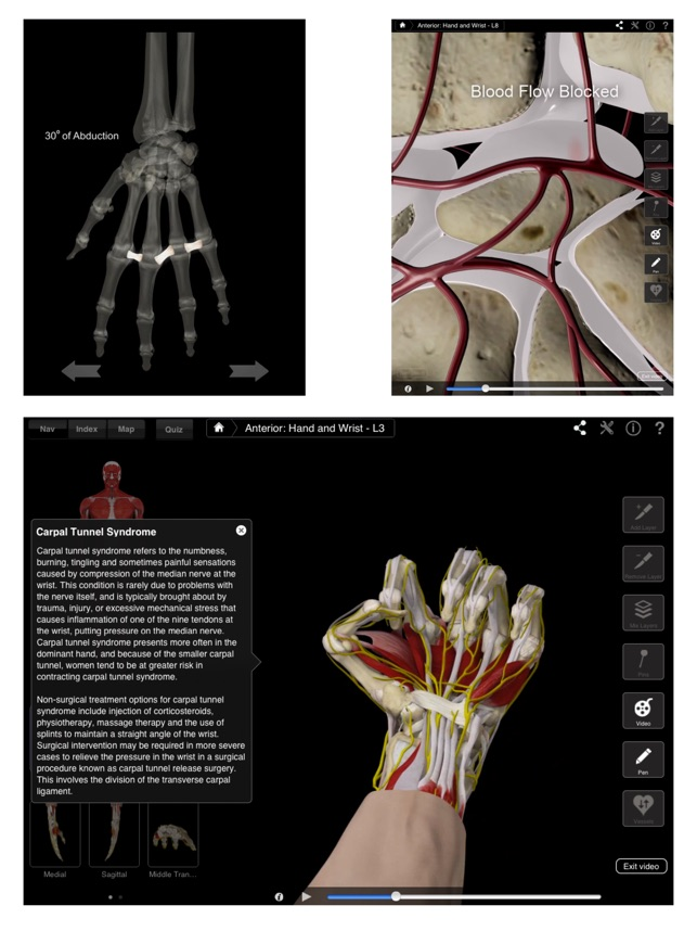 Hand & Wrist Pro III for iPad on the App Store