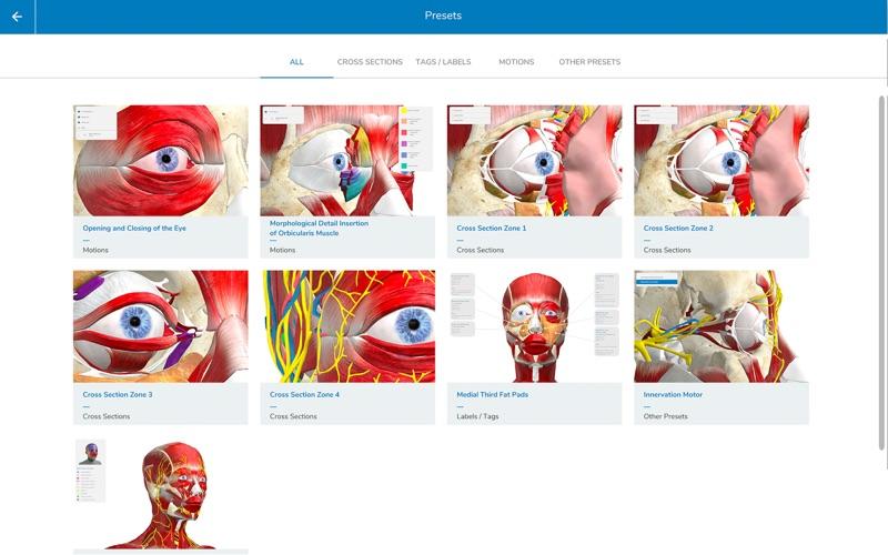 Beut & Jelks Oculoplasty скриншот программы 3