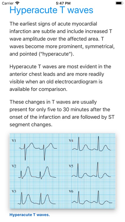 ECG Basics Pro - ECG Made Easy screenshot-1