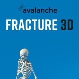 Fracture 3D