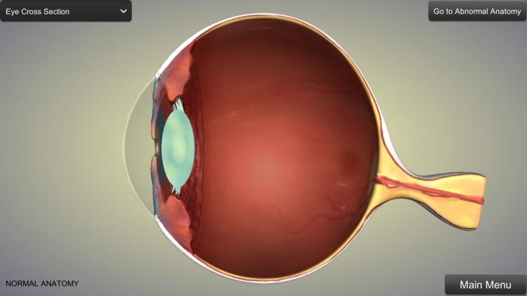 Eye Anatomy screenshot-0