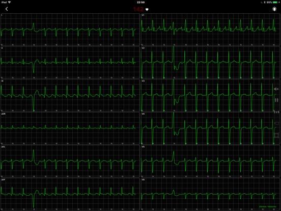 https://is5-ssl.mzstatic.com/image/thumb/Purple128/v4/43/ce/aa/43ceaafd-0e5b-2a60-4482-076311b2f991/source/552x414bb.jpg