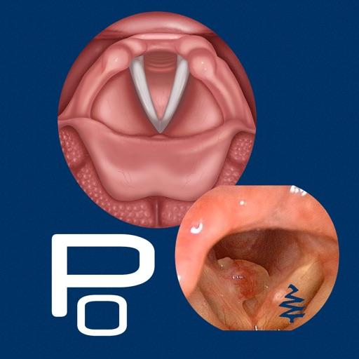 Vocal Pathology: Polyps