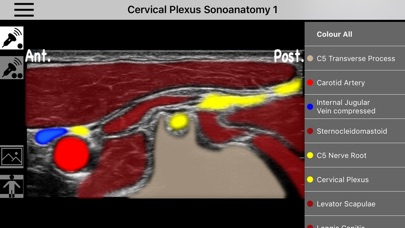 AnSo Anaesthesia Sonoanatomy Screenshot 5